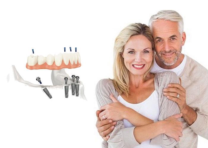 servizi-implantologia2