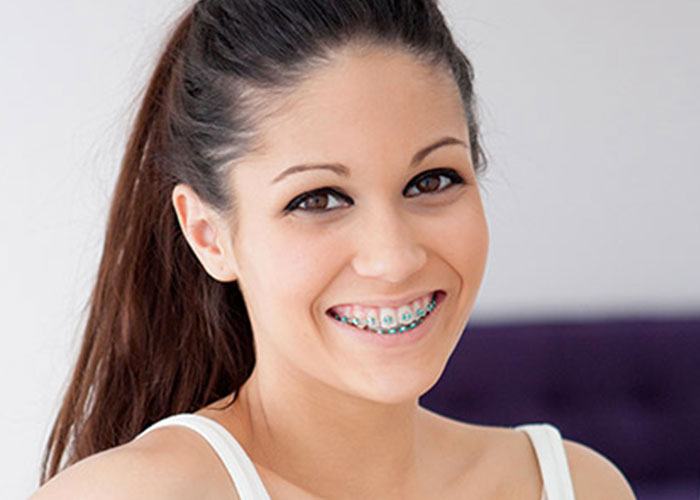 servizi-odontoiatria_conservativa